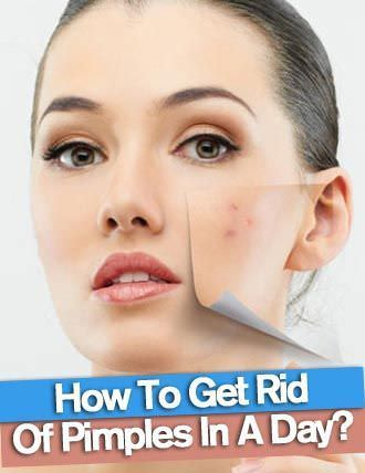 Instant Way To Get Rid Of Pimples