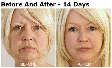 DMAE Products: Instant Wrinkle Relief or Hype? - Skin ...